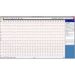 Electrocardiógrafo de Reposo de Altas Prestaciones ECG 12R pantalla software