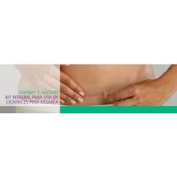Askina C-Section Kit para tratamiento cicatrices post-cesarea
